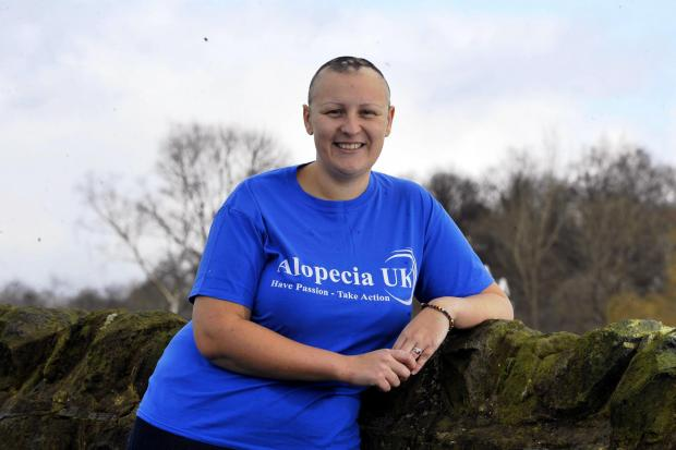 Amy Johnson, who suffers from alopecia, has set up a support group
